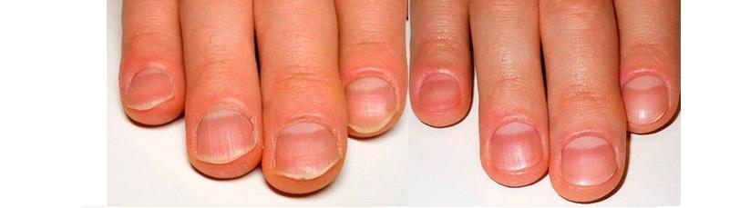 ногти итог маникюра муж