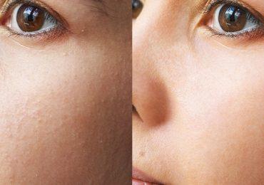 чистка лица в некрасовке до и после